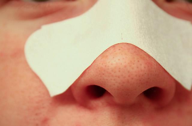 pores dilates points noirs