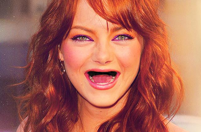 Les actrices sans leurs dents – Le Tumblr du Moment