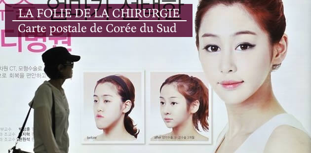 big-chirurgie-esthetique-coree-du-sud
