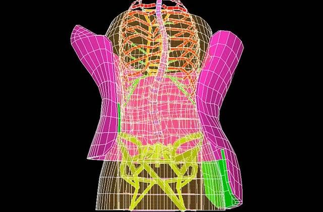 J'ai porté un corset orthopédique — Témoignage