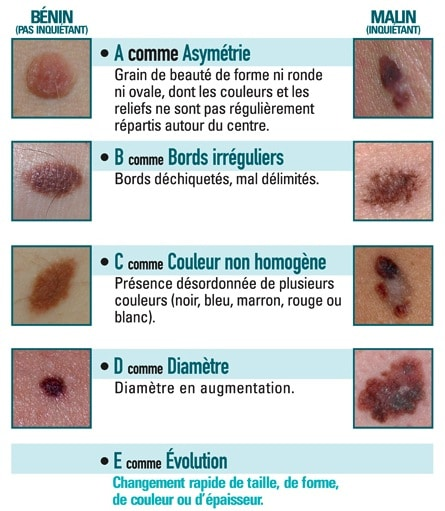 abcde-grains-beaute-cancer-peau