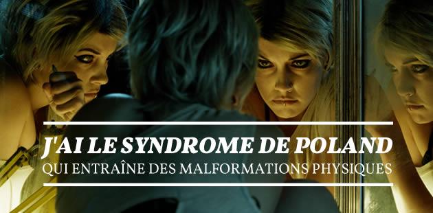 J'ai le syndrome de Poland, qui entraîne des malformations physiques