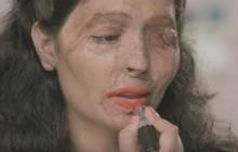Une asso publie des tutos «beauté» pour parler des attaques à l'acide