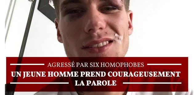 Agressé par six homophobes, un jeune homme prend courageusement la parole