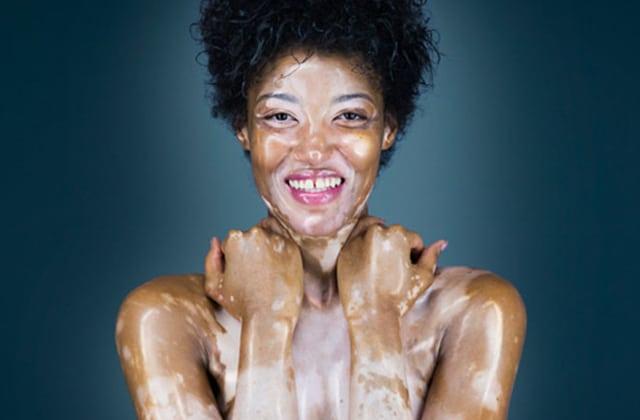 Histoires de corps, un projet de livre photos à soutenir qui célèbre la beauté des corps!