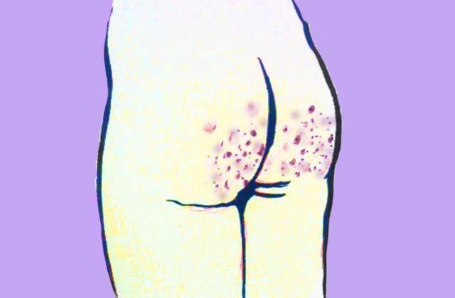 Comment se débarrasser de l'acné sur les fesses?