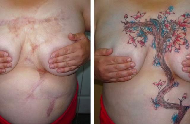 Des tatouages gratuits pour aider les victimes de violence conjugale à se reconstruire