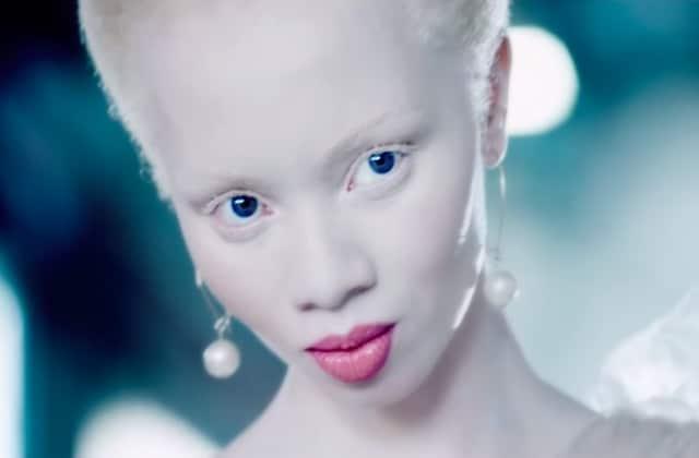 Vivre avec l'albinisme en 2018 — Appel à témoins