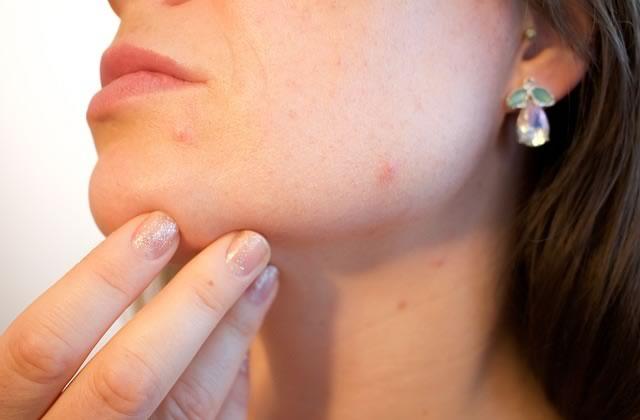 Comment savoir si ta peau est sèche, mixte ou grasse?