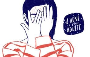 L'acné à l'âge adulte et ses conséquences sur l'estime de soi