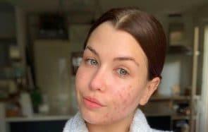 L'acné, un combat quotidien aussi pour EnjoyPhoenix